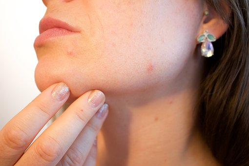Can an Intolerance Test Help my Acne?